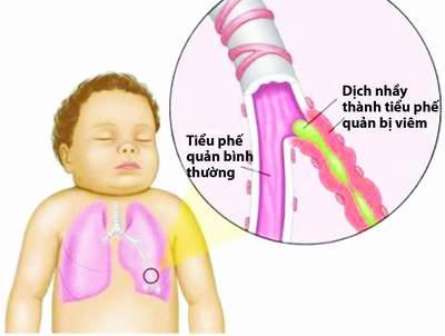 Trẻ bị viêm tiểu phế quản liệu có nên dùng kháng sinh ngay